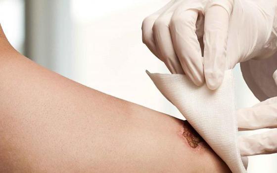 Curso a distancia de Cuidados de la piel, quemaduras y úlceras cutáneas